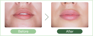 This Procedure Uses Hyaluronic Acid Or Fat Injections According To Your Specific Needs And Desired Results To Modify Fullness And Achieve Attractive Plump